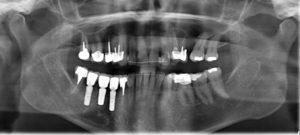 Implantologie et chirurgie de greffe osseuse