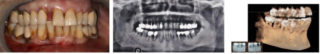 Parodontologie laser assistée